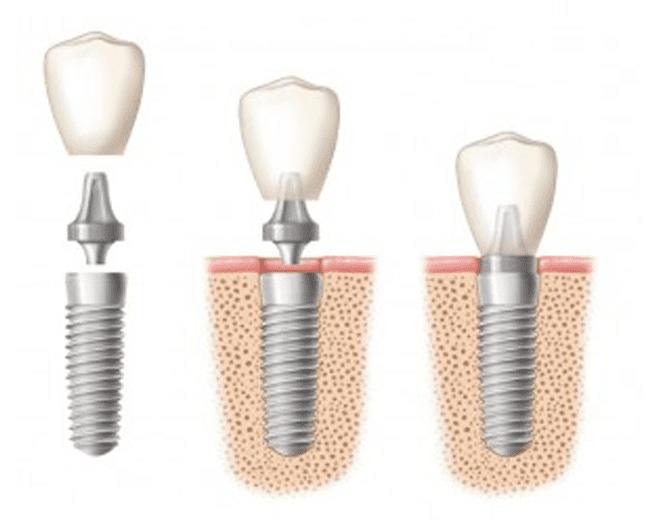 IMPLANTE-dental-2