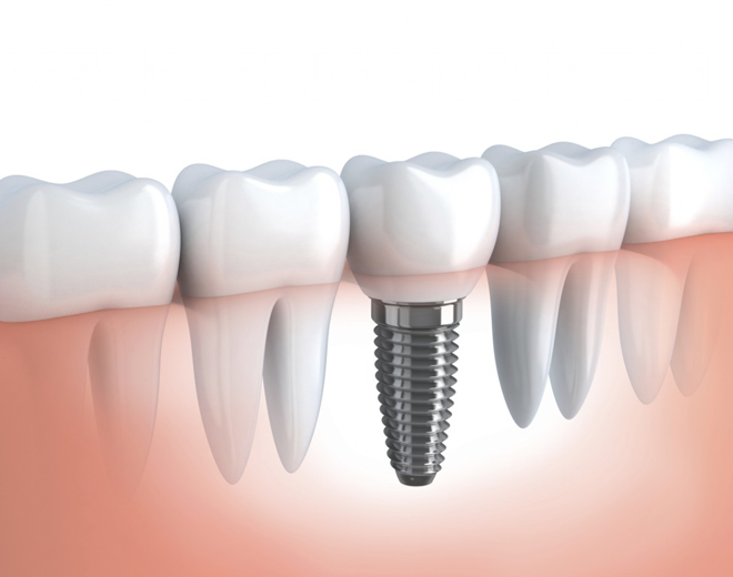 Tratamiento Implante dental
