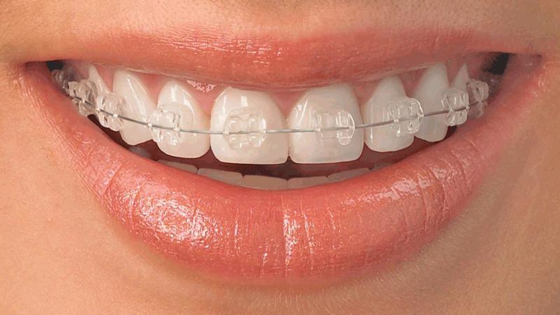 ortodoncia-adulto