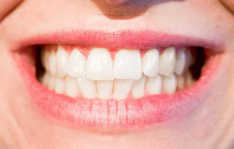 causas caries dental