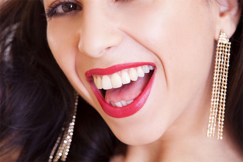 dientes mas blancos blanqueamiento dental