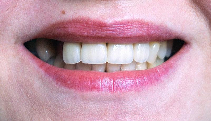 pérdida de dientes