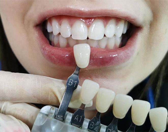 Blanqueamiento dental DESPUES