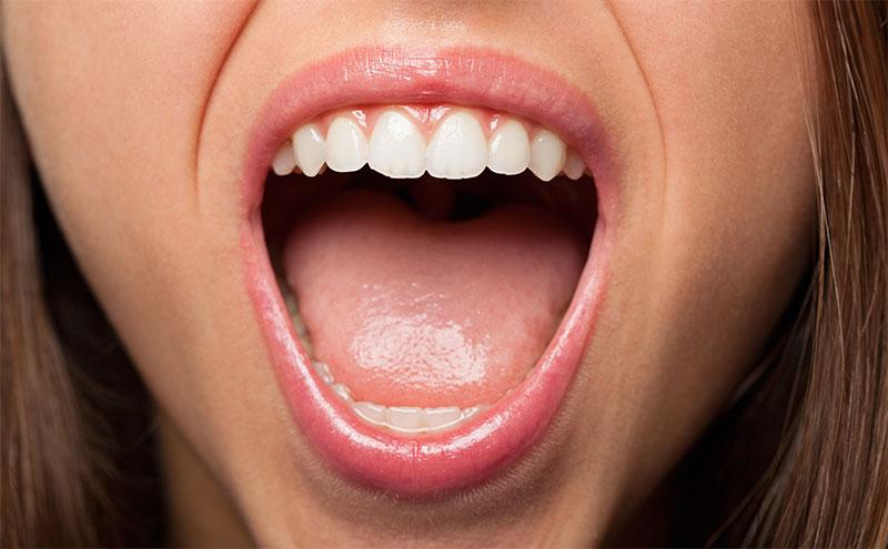 síndrome de Sjögren y salud bucodental