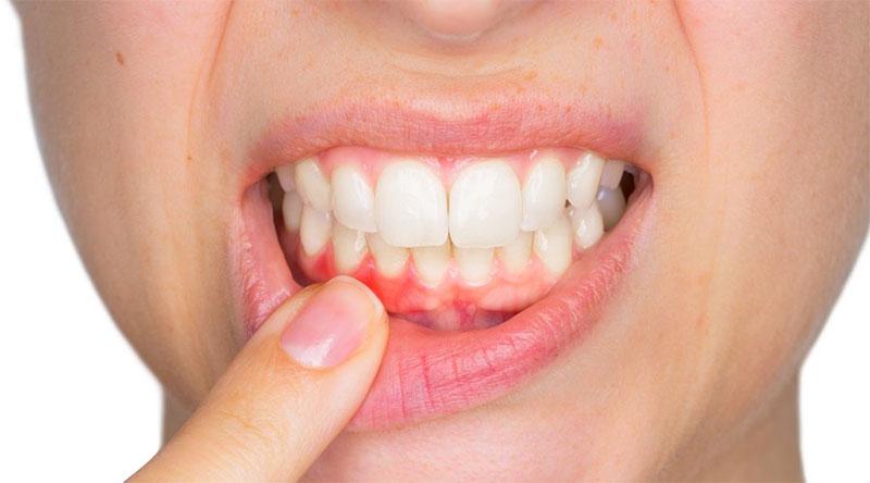 Qué es absceso dental